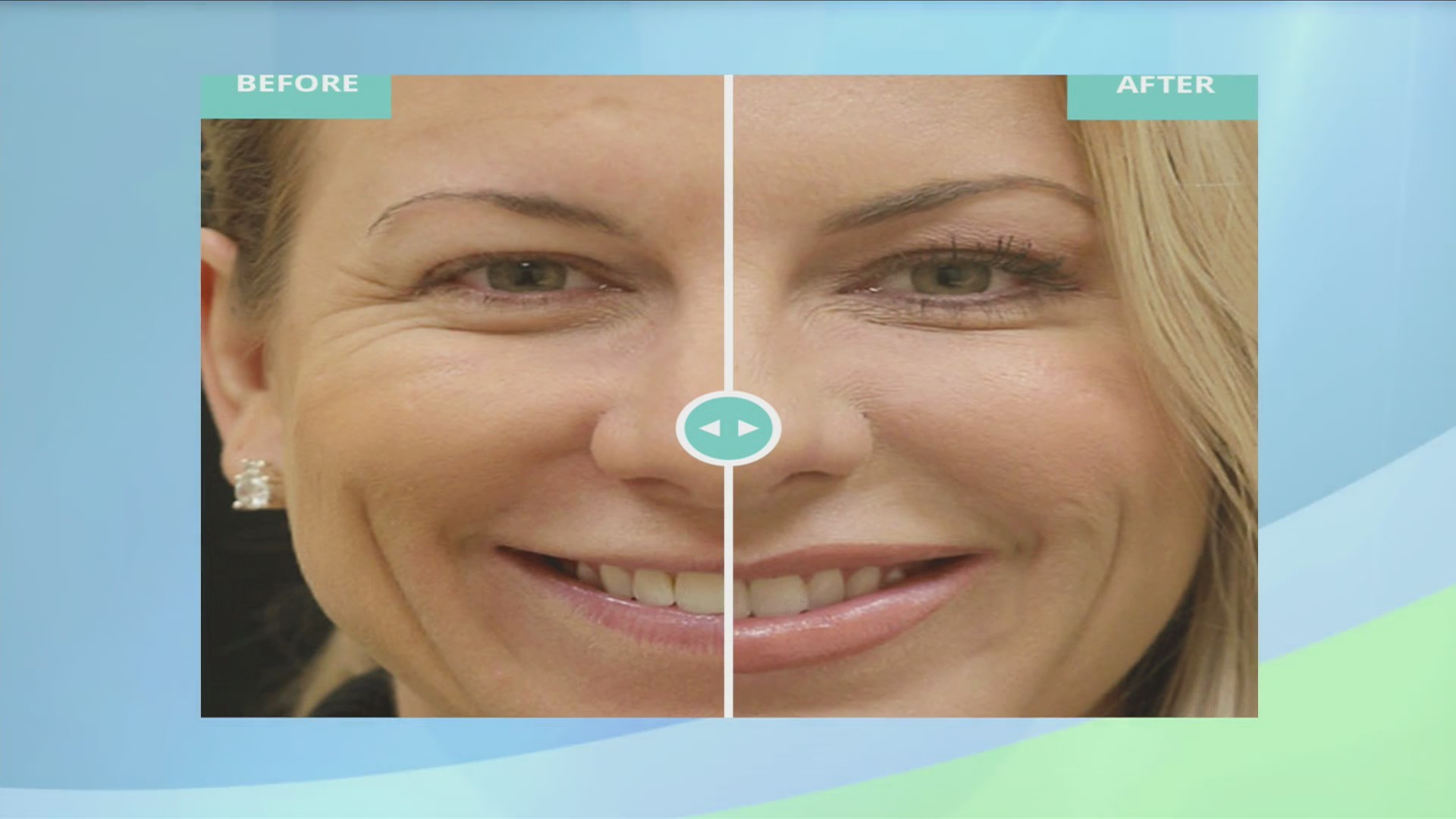 Natural_Looking_Results_at_The_Med_Spa_a_0_20190404224943