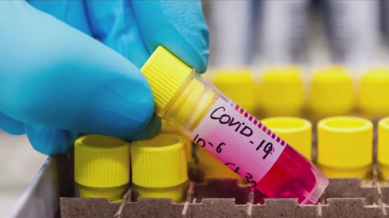 Health officials are working to get more novel coronavirus testing sites in Fresno County